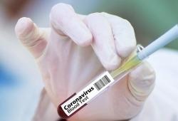 世卫组织新冠病毒溯源国际专家组将于近期来华