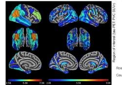 "哈佛大学研究发现:<font color=""red"">Tau</font>蛋白对认知功能影响,男女有别"