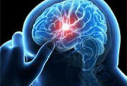 NEJM:納曲酮-安非他酮用于甲基苯丙胺使用障礙的治療