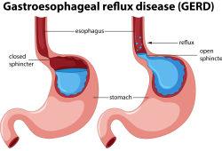 JAMA子刊:5个日常小习惯,显著减轻胃食管反流病症状