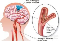 JAMA子刊:小卒中合并大血管闭塞患者单纯静脉溶栓治疗的神经系统结局预测