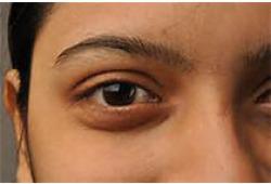中国干眼专家共识:治疗(2020年)