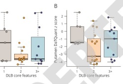 Neurology:伴轻度认知障碍的路易体痴呆患者,淀粉样蛋白-β沉积较少,多巴胺能活性降低