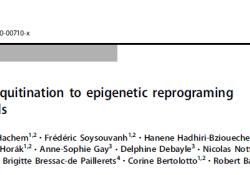 "Cell Death Differ:FBXO32:关联黑色素<font color=""red"">瘤</font>细胞中泛素化作用与表观遗传重塑的关键因子"
