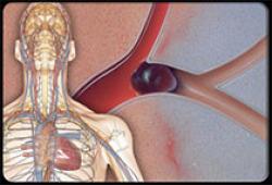 ATVB:软骨寡聚基质蛋白新表位是症状性颈动脉狭窄的新型生物标志物