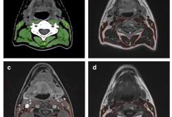 Eur Radiol:头颈部肿瘤合并少肌症如何评价?