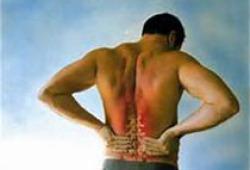 Neurology:特发性颅内高压的发病率、患病率和结局