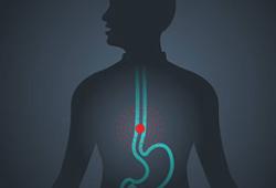 Ann Surg:微创食管切除术 vs 开胸食管切除术治疗的晚期食管癌患者的5年存活率