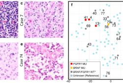 Acta Neuropathologica: 在一系列83例H3F3A K27M突变的弥漫性中线胶质瘤中,FGFR1突变与较好的预后相关