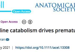 "Aging Cell:不完全的脯氨酸分解促使<font color=""red"">精子</font>过早衰老"