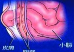 Ann Surg:腹疝修补术,采用生物补片还是合成补片?