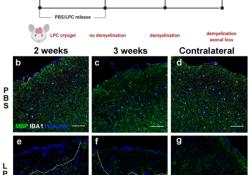 "Acta Neuropathologica: MS选择<font color=""red"">性</font>神经退行<font color=""red"">性</font><font color=""red"">变</font>可能继发于皮质脱髓鞘"
