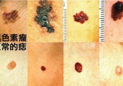 "J Clin Oncol:贝伐单抗+卡铂+紫杉醇可明显改善转移性粘膜黑色素瘤的<font color=""red"">预后</font>"