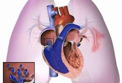 Pemziviptadil治疗肺动脉高压,Ib / IIa期临床试验取得积极结果