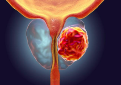 """J Clin Oncol:<font color=""""red"""">强化</font>局部放疗可改善局限性前列腺癌患者的疾病控制"""