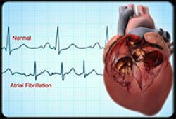 Heart:中国成人房颤患病率、认知和治疗调查