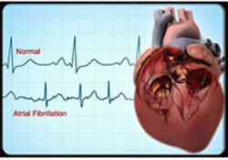 "Heart:中国成人房颤<font color=""red"">患病</font><font color=""red"">率</font>、认知和治疗调查"