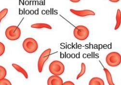 "欧洲<font color=""red"">药品</font><font color=""red"">管</font><font color=""red"">理</font>局(EMA)开始审查GBT的镰状细胞疗法Oxbryta"
