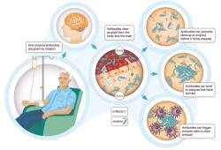 Science子刊:天然Aβ抗体与阿尔茨海默病脑淀粉样变和认知功能的关系