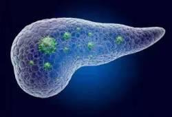 Eur J Cancer:吉西他滨+白蛋白结合型紫杉醇对比FOLFIRINOX一线治疗晚期胰腺癌疗效和安全性