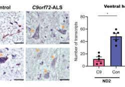 "Acta Neuropathologica: C9orf72肌萎缩侧索硬化运动<font color=""red"">神经</font>元中的线粒体生物能<font color=""red"">缺陷</font>导致轴突稳态失调"