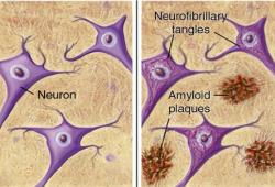 Stroke:Aβ和Tau在脑小血管疾病和皮质微梗死之间的关系