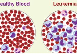 "Blood:Flotetuzumab作为<font color=""red"">难治</font><font color=""red"">性</font>AML患者的补救免疫疗法的疗效和安全<font color=""red"">性</font>"
