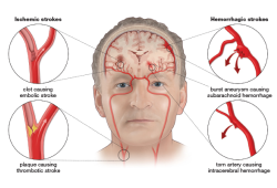 Lancet子刊:和时间赛跑——如何快速、准确识别颅内大血管闭塞性卒中?
