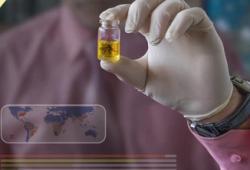 Nat Commun:非洲谱系寨卡病毒株相比于亚洲谱系更具高传播性和胎儿致病性