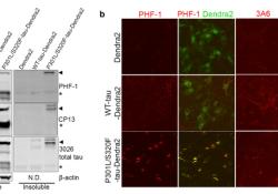 "Acta Neuropathologica: 光动力研究显示<font color=""red"">tau</font>包裹体的快速形成和明显转化"