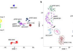 "Acta Neuropathologica: 具有SMARCA4突变的非<font color=""red"">典型</font>畸胎样/横纹肌样肿瘤在分子水平上不同于SMARCB1缺陷病例"