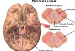 IkT-148009治疗帕金森,I期临床试验已正式开始