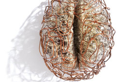 Nature Communications:新发现!左右半脑不对称性变化速度或提示老年痴呆风险