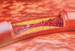 JACC:中年亚临床动脉粥样硬化与大脑代谢及认知功能的关系