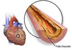 "JAHA:接受冠状动脉搭桥术的<font color=""red"">急性</font>冠状动脉综合征患者血小板静止治疗"