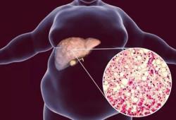 多学科声明呼吁:糖尿病患者不要忘记筛查肝脏疾病!