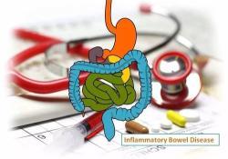"IBD: 使用粪乳铁蛋白水平监测肠道<font color=""red"">炎症</font>可以快速预测<font color=""red"">炎症</font>性肠病的治疗效果"
