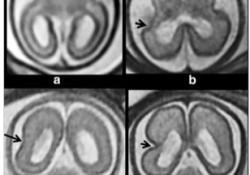 """Eur Radiol:利用宫内<font color=""""red"""">MRI</font>早早地发现胎儿皮层形成异常!"""