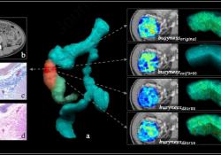 "Gastroenterology:评估克罗恩病患者有无肠纤维化:<font color=""red"">基于</font>机器学习<font color=""red"">的</font><font color=""red"">模型</font> 完胜 放射科医生!"