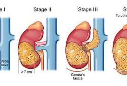 Ilixadencel治疗肾癌,患者生存期得以显著延长