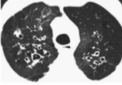 """Lancet Respir Med:国际性多队列研究---<font color=""""red"""">中性</font>粒<font color=""""red"""">细胞</font>胞外陷阱与支气管扩张<font color=""""red"""">症</font>的严重程度和治疗反应密切相关!"""