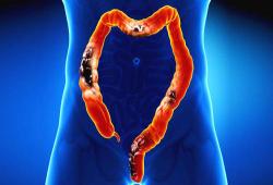 DCR: 穿孔性憩室炎行结肠切除术选择开放式还是微创更好呢?