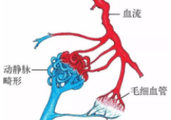 """J Am Soc Nephrol:局部<font color=""""red"""">应用</font>纳米颗粒包裹<font color=""""red"""">的</font>1α,25(OH)2D3可预防动静脉瘘<font color=""""red"""">的</font>静脉内膜增生和静脉狭窄形成"""