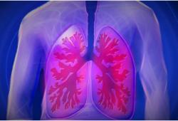 Nat Commun:自身免疫性肺泡蛋白沉积症发病风险相关遗传决定因素