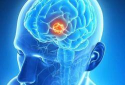 Neuro Oncol:激素治疗会恶化脑转移癌患者的总生存期和无进展生存期!