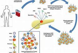 NICE:欧洲套细胞淋巴瘤患者将从CAR-T细胞疗法中全面受益!
