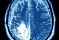 Neuro Oncol:MEK-1/2抑制剂selumetinib明显改善复发性/进展性儿童低级别胶质瘤预后