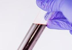 "JAHA:早期预测卒中相关并发症的血液<font color=""red"">生物</font><font color=""red"">标志</font><font color=""red"">物</font>组合"