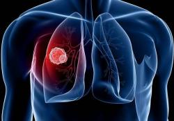 "<font color=""red"">Cancer</font> Discov:新型EGFR抑制剂Mobocertinib用于携带EGFRex20ins突变的<font color=""red"">NSCLC</font>患者的疗效和安全性"