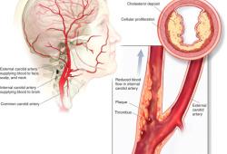 Lancet子刊:警惕!颈动脉更狭窄一点,中风的风险可能就翻倍?!